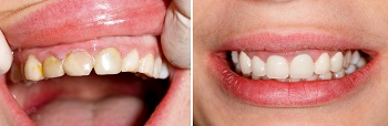 Eight Mile Plains dentist Before And After gum disease Treatment
