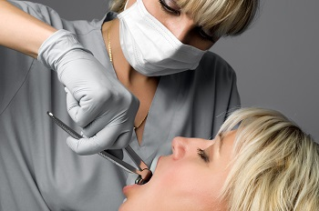 Eight Mile Plains dentist Tooth Extraction