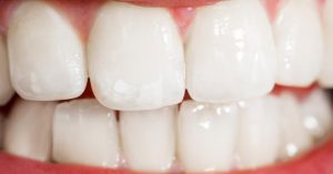 Eight-Mile-Plains-dentist-enamel-blog-enamel