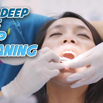 eight-mile-plains-everyday-smile-dental-practice-deep-cleaning-how-deep